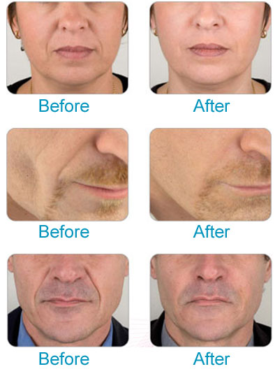 Dermal fillers from cosmetic dentist in Doncaster, Fountain Dental