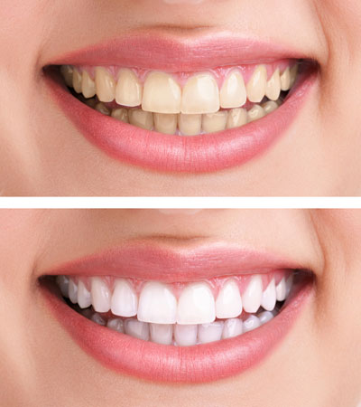 Teeth whitening in Doncaster